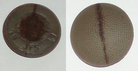 German plastic buttons