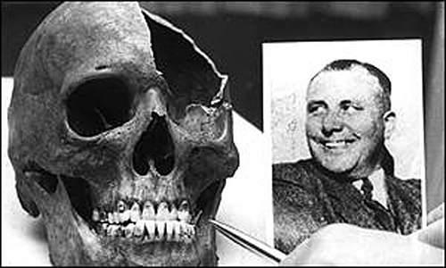 Click image for larger version.  Name:Bormann skull.jpg Views:2915 Size:109.3 KB ID:591019
