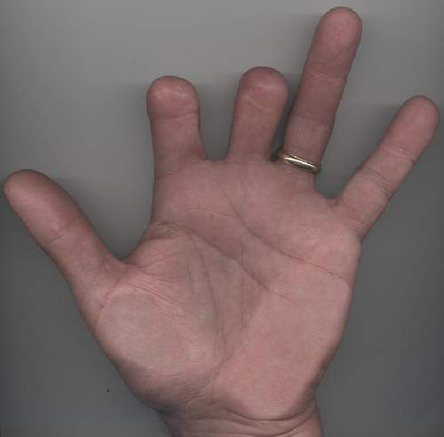 Click image for larger version.  Name:missing-finger.jpg Views:154 Size:22.5 KB ID:977088