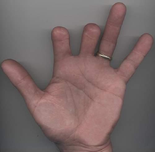 Click image for larger version.  Name:missing-finger.jpg Views:311 Size:22.5 KB ID:977088